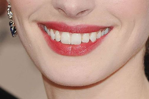 ¿A quién pertenece esta sonrisa?
