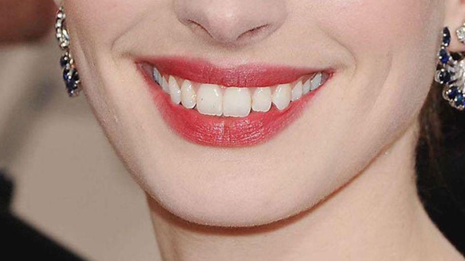 Las sonrisas de las celebrities: ¡Adivina a quién pertenecen!