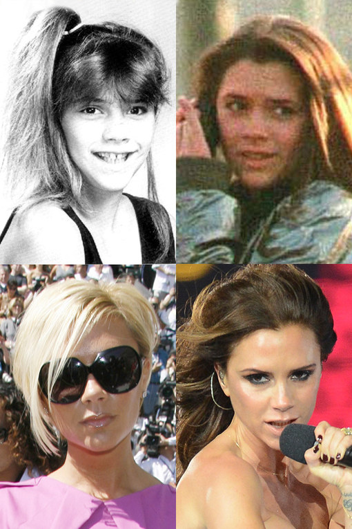 Victoria Beckham: From Spice Girl to fashion icon