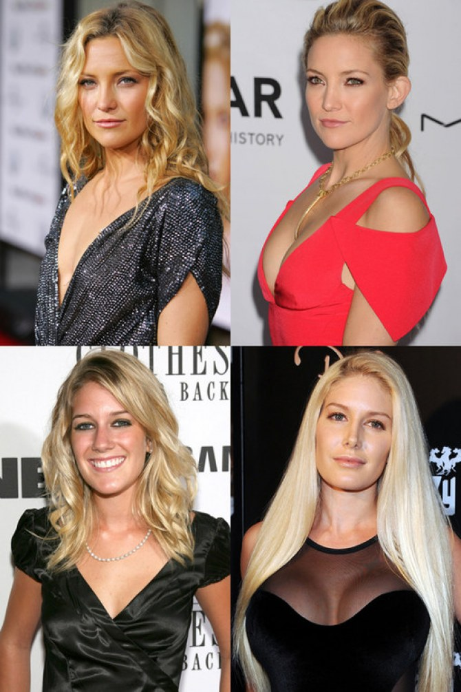 Celeb boob jobs: A-listers with breast augmentations