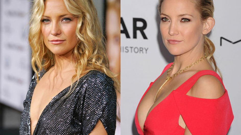 Celeb boob jobs: A-listers with breast augmentation