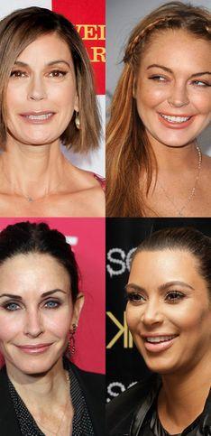 Stars : Toutes accros au Botox®