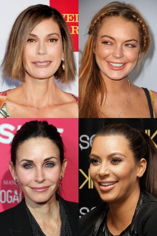 Stars : Botox® par ci, Botox® par là !