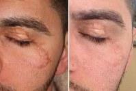 laser co2 fractionne cicatrices