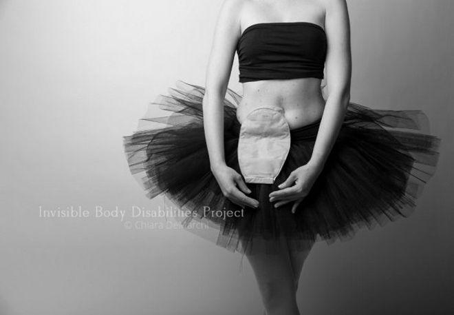 Invisible bodies disabilities - Chiara de Marchi