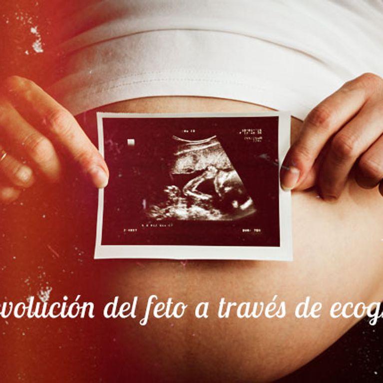 37c2ea41a Embarazo  evolución del feto a través de ecografías   Foto - enfemenino