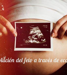 La evolución del feto a través de ecografías