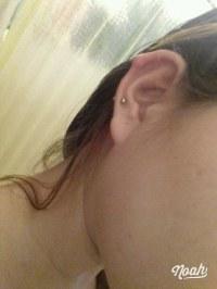 Piercing Infectado En El Cartilago De La Oreja Ayuda