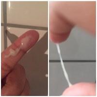 Eisprung Zervixschleim Achtung Bilder