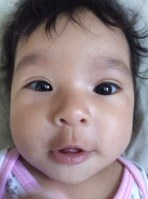 ojo hinchado bebe 3 meses