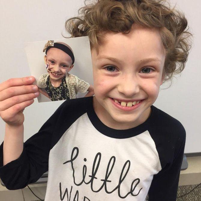 Prima e dopo il cancro: le foto di chi è tornato a vivere!