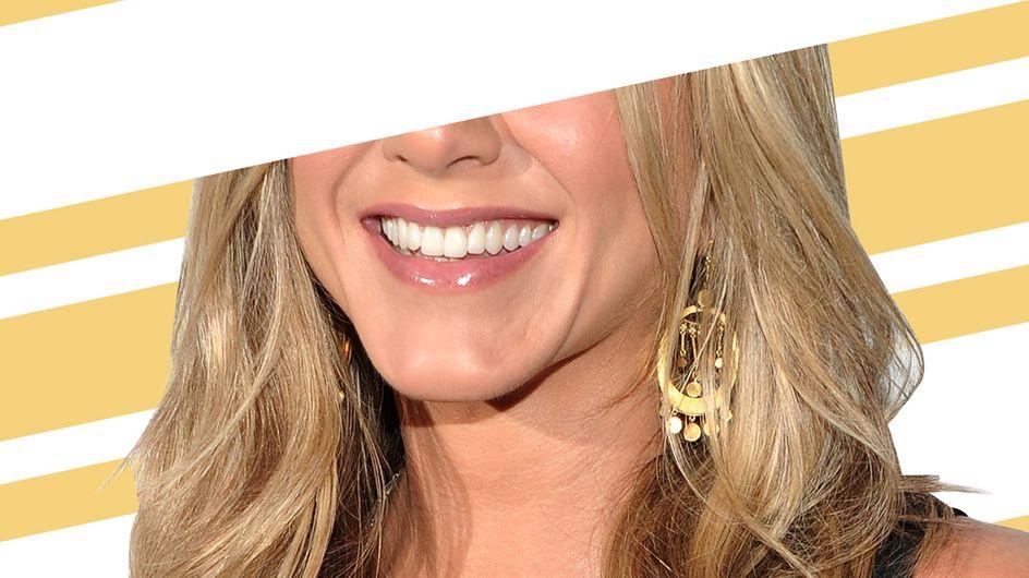Devinez à quelles stars appartiennent ces sourires ?