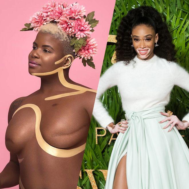 Ces mannequins atypiques qui brisent les standards de beauté