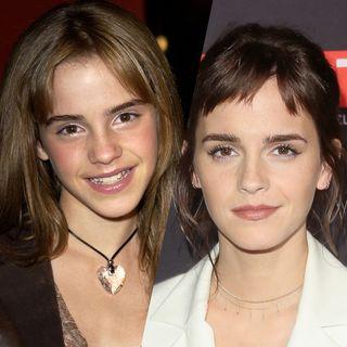 Emma Watson : d'enfant star à icône beauté