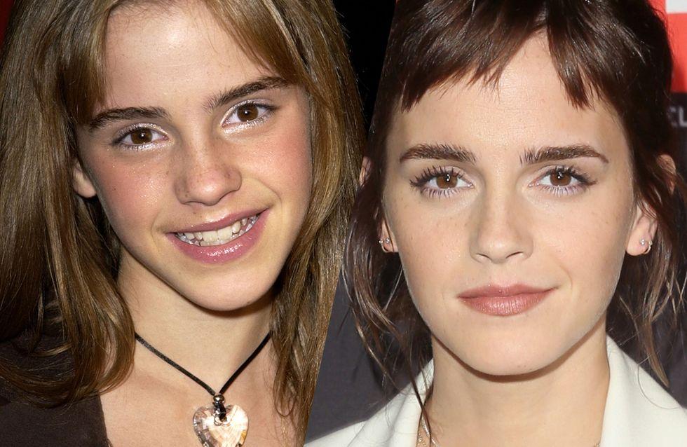 Emma Watson: Ihre Verwandlung vom Kinderstar zur Beauty-Ikone