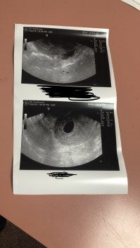 No se ve el embrion semana 7