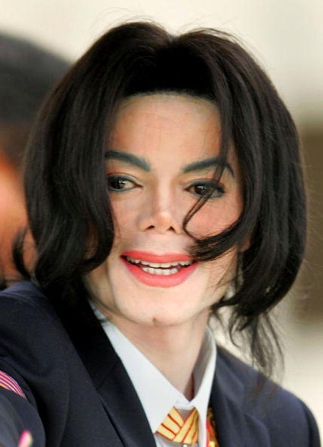 Prominente Männer mit Schönheits-OPs