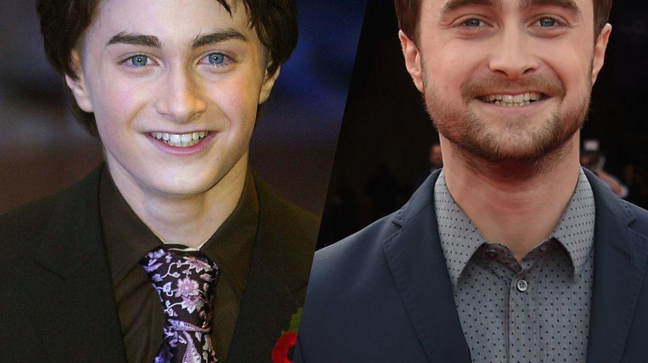 Daniel Radcliffe célèbre ses 30 ans ! Retour sur l'évolution physique du légendaire Harry Potter