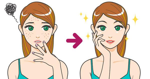 Face-Mapping: Was Pickel im Gesicht bedeuten können
