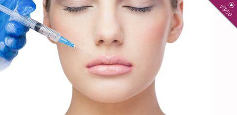 Relleno de labios: ¿Cómo te lo tienen que hacer para que te quede bien?