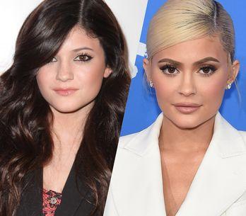 Retour sur l'incroyable évolution beauté de Kylie Jenner