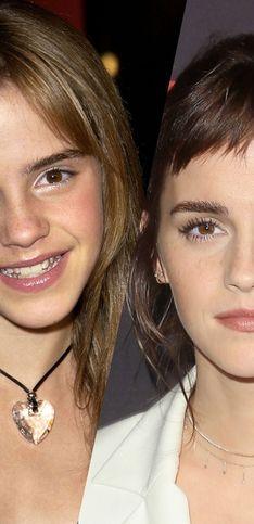 Emma Watson fête ses 30 ans, retour sur son évolution d'Harry Potter à aujourd'hui