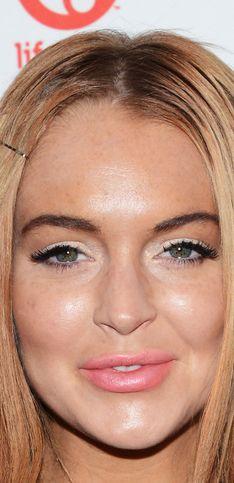 Botox mania. Le star che hanno ceduto al ritocchino estetico
