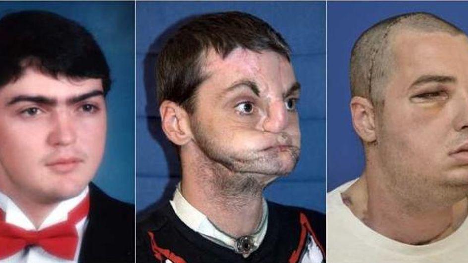 Greffe : Découvrez le nouveau visage de cet homme (Photos)
