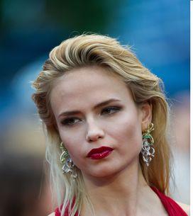 Natasha Poly : Amputée d'un bras en Une du Vogue Russie (Photos)
