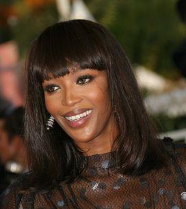Naomi Campbell : Elle perd ses cheveux !