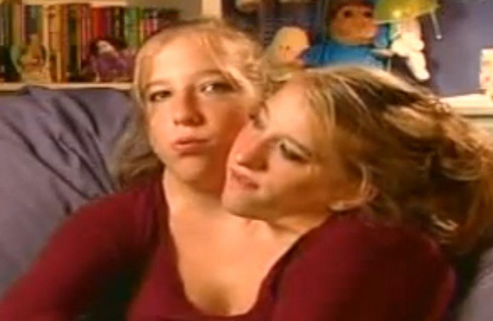 Des soeurs siamoises, bientôt stars de la télé réalité
