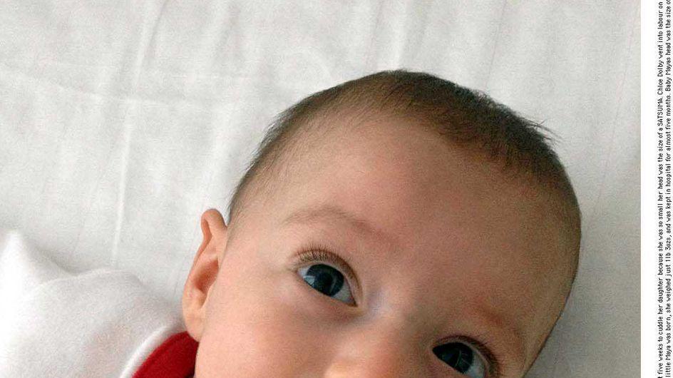 Faits divers : Elle accouche à seulement 24 semaines de grossesse