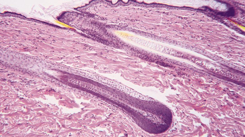 Infertilité : Des ovocytes créés à partir de cellules-souches