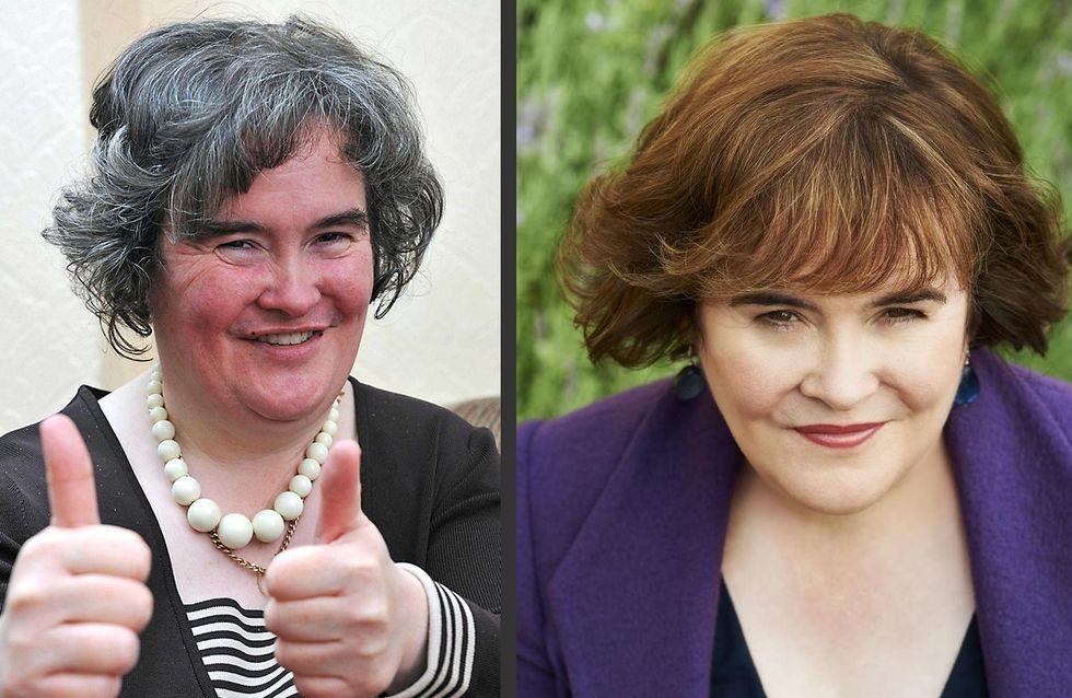Susan Boyle : Son incroyable transformation ! (avant/après)