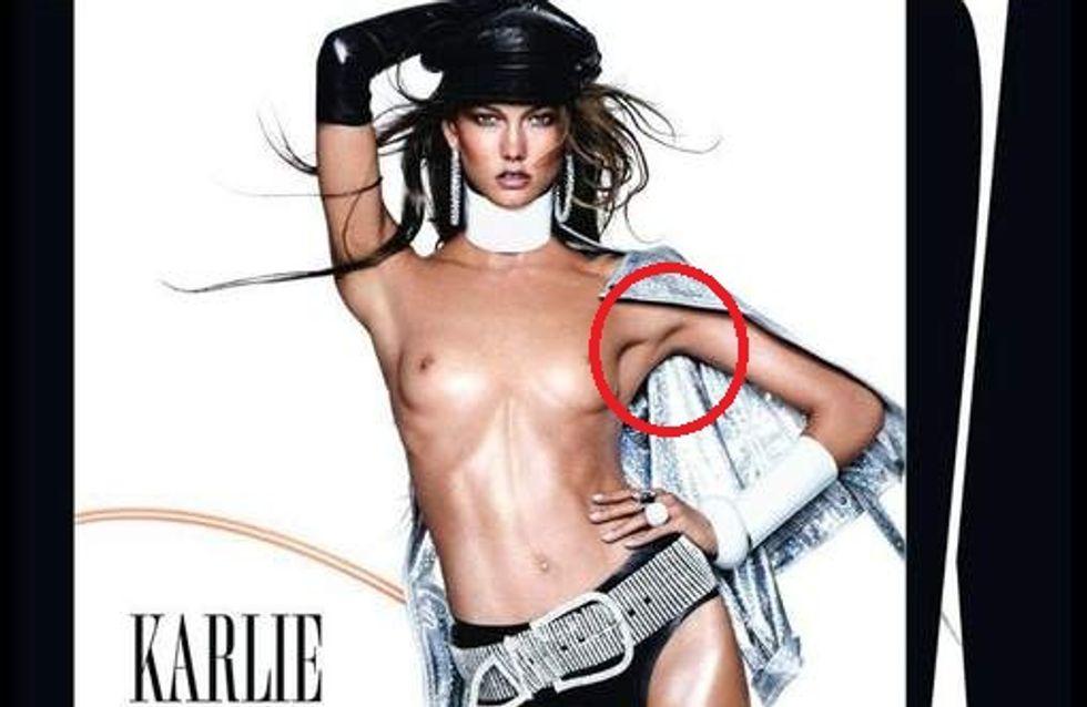 Karlie Kloss : Photoshop lui fait pousser des aisselles (Photos)