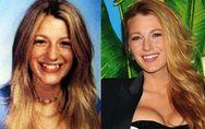 Blake Lively et la chirurgie esthétique : Son avant-après ! (Photos)