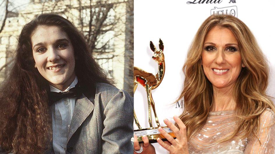 Céline Dion : Son avant-après chirurgie ! (Photos)