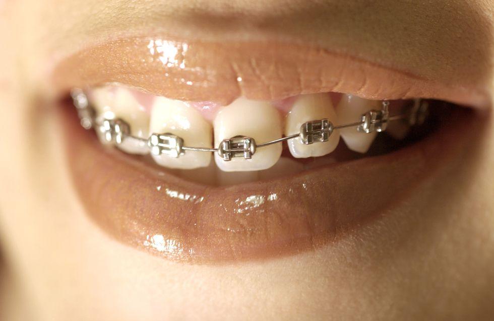 Faux appareils dentaires : Une tendance affreuse et dangereuse !