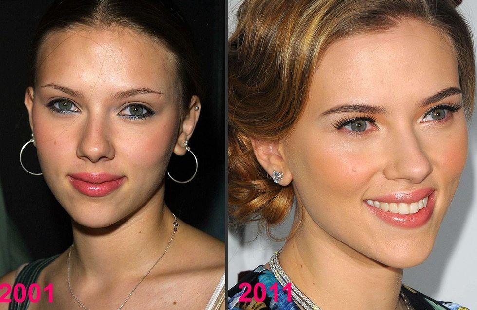 Scarlett Johansson et la chirurgie esthétique : Son avant/après en photos