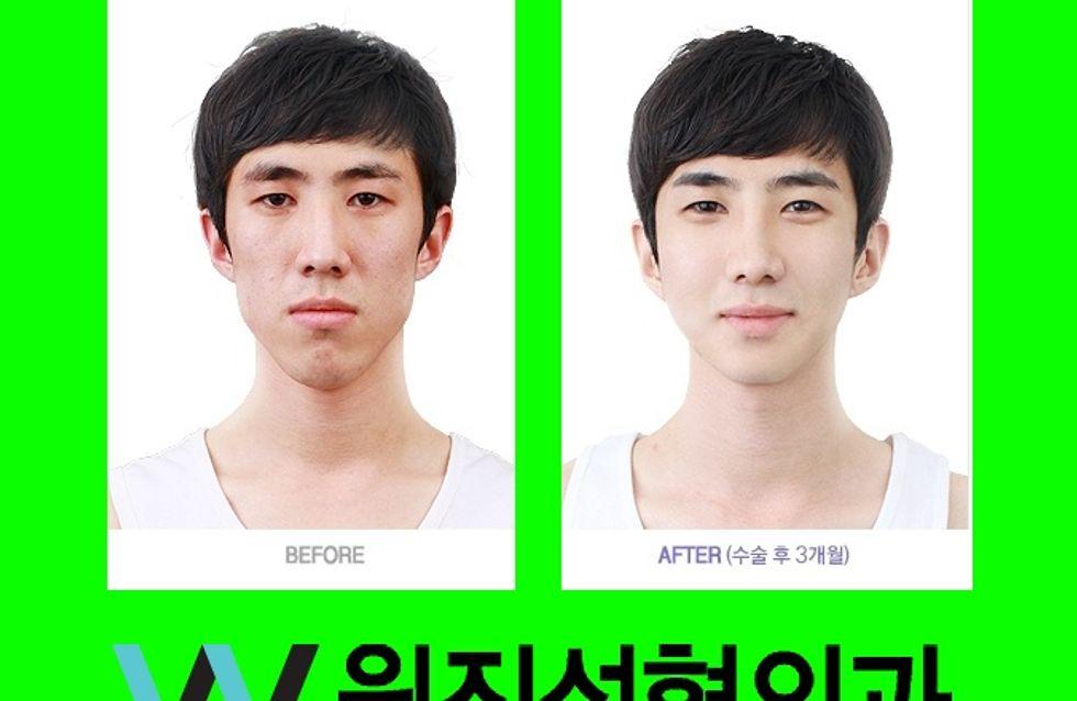 Chirurgie esthétique : Des avant/après incroyables en Corée (Photos)
