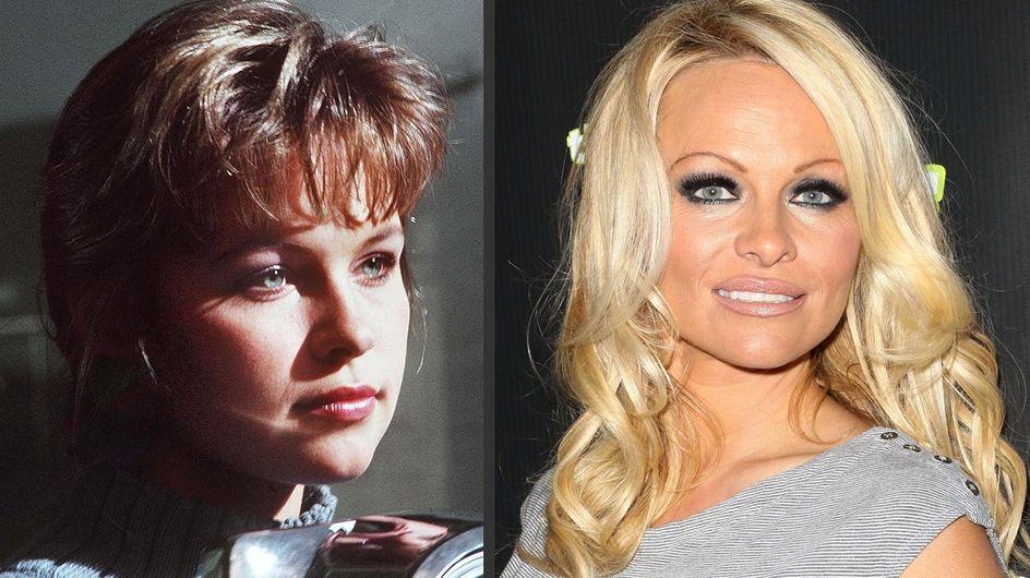 Pamela Anderson et la chirurgie esthétique : Son avant/après en photos