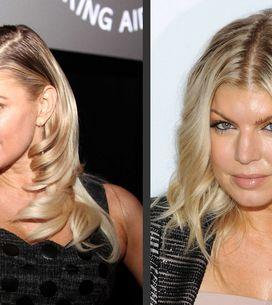 Fergie et la chirurgie esthétique : Son avant/après en photos
