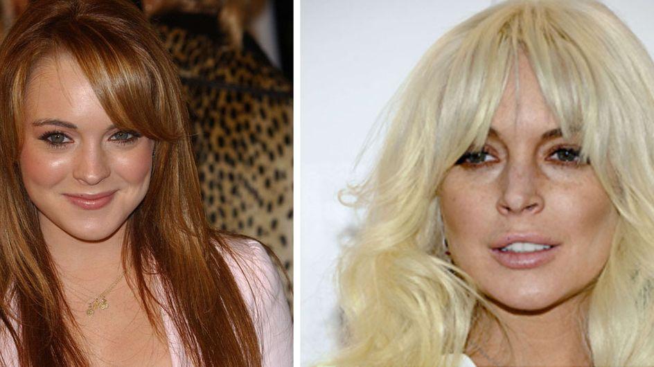 Lindsay Lohan et la chirurgie esthétique : Son avant/après ! (Photos)