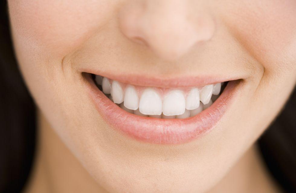 Bars à sourire : Il ne font pas rire les dentistes
