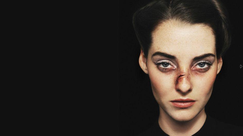 Violences faites aux femmes : La campagne choc du magazine « 12 » (Photos)
