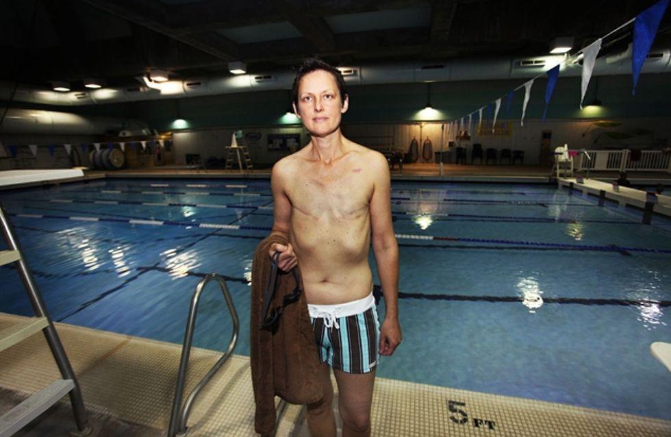 Cancer du sein : Une femme se voit refuser l'entrée à la piscine