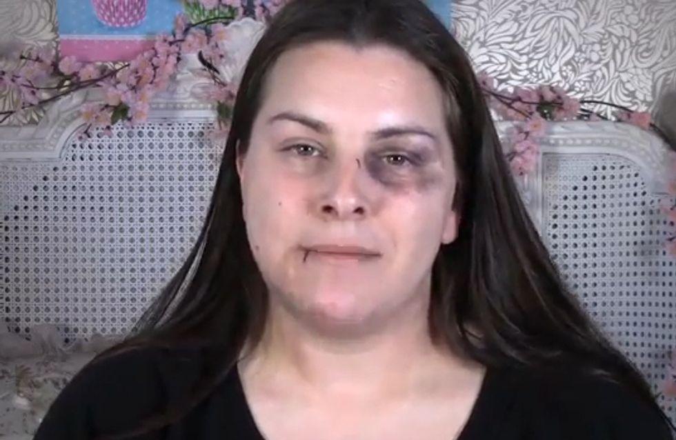 Violence conjugale : Une vidéo pour apprendre à dissimuler les traces de coups...