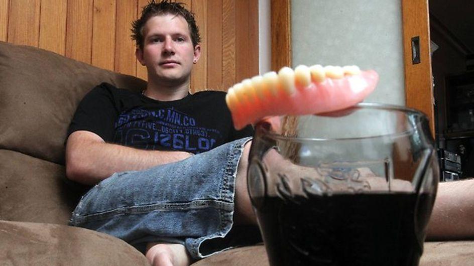 Santé : A 25 ans, il perd toutes ses dents suite à une surconsommation de soda