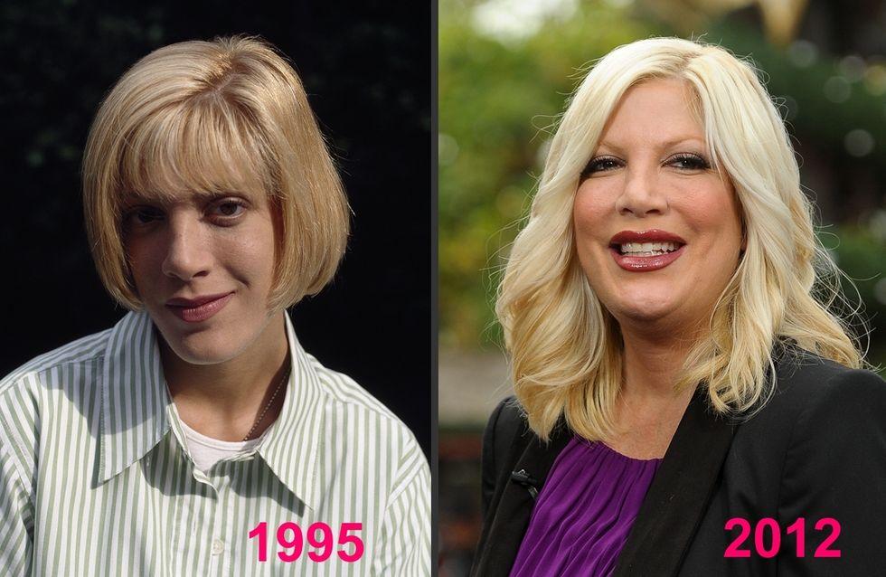 Tori Spelling et la chirurgie esthétique : Son avant/après en photos