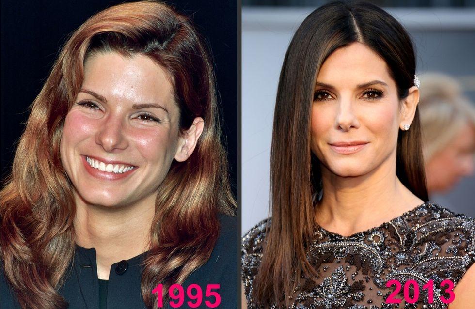Sandra Bullock et la chirurgie esthétique : Son avant/après en photos !